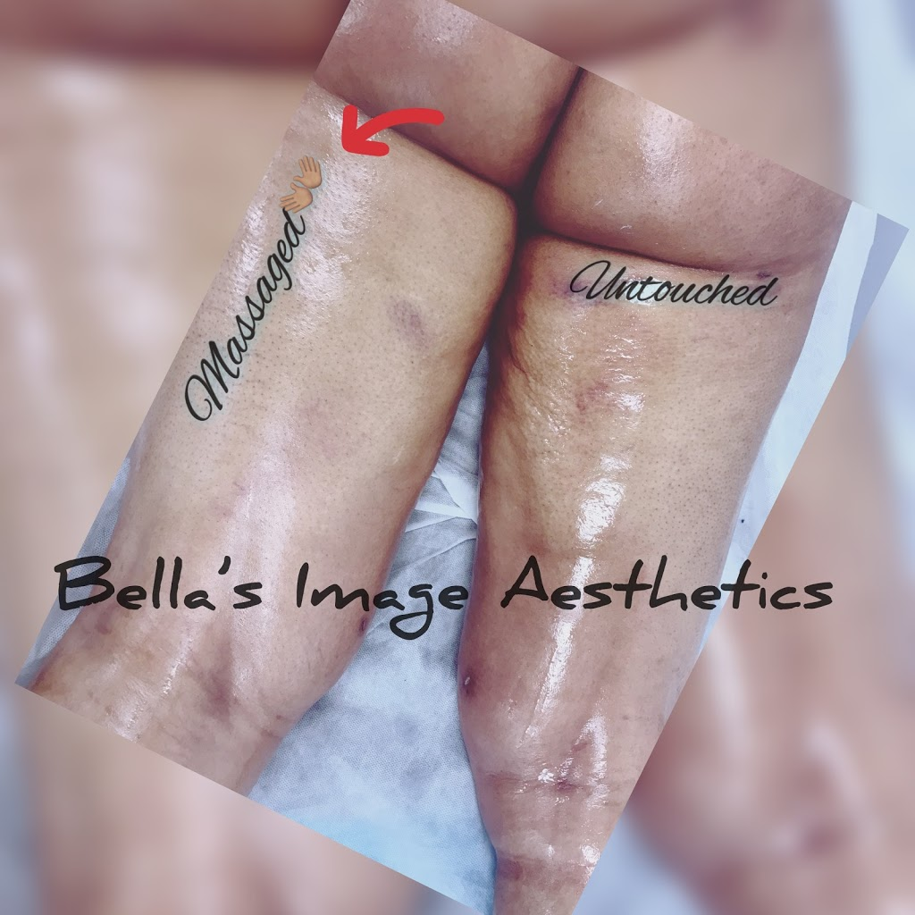 Bella's Image Aesthetics | spa | 249-12 Jericho Turnpike, Floral Park, NY 11001, USA | 5165024939 OR +1 516-502-4939