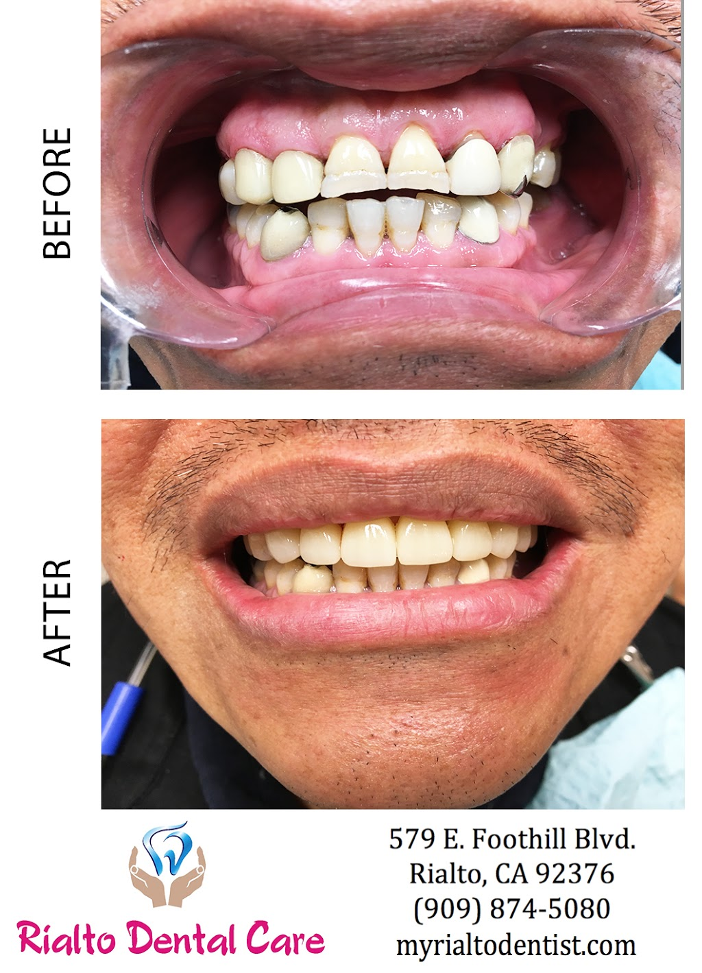 Rialto Dental Care - dentist    Photo 9 of 10   Address: Stater Bros. shopping center, 579 E Foothill Blvd, Rialto, CA 92376, USA   Phone: (909) 874-5080